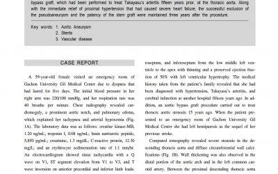 SEAL Flex case report(Flex Takayasu)