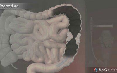 S&G Biotech EGIS Colorectal stent