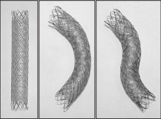 Case_A Double-Layered Covered Biliary Metal Stent