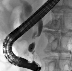 Case_Predictive factors for pancreatitis and cholecystitis in endoscopic covered metal stenting
